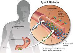 Wie kann man Diabetes Mellitus vorbeugen