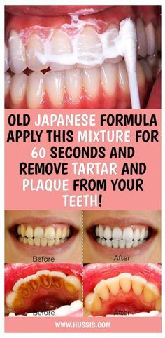 Health Discover Old Japanese Formula Apply This Mixture For 60 Seconds And Remove Tartar And Plaque From Your Teeth Health Glowpink Teeth Health Dental Health Oral Health Health Care Dental Care Healthy Teeth Health Heal Gum Health Healthy Life Teeth Health, Oral Health, Health Care, Healthy Teeth, Dental Health, Health Heal, Gum Health, Healthy Life, Healthy Beauty