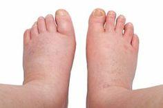 Opuchnuté nohy: 5 domácich liekov, ktoré zmiernia opuch