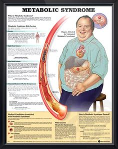Metabolic Syndrome anatomy poster explains cardiometabolic syndrome, including obesity, high glucose, hypertension, high cholesterol. Cardiovascular for doctors and nurses.