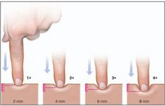 Pitting Edema 1+ 2mm or less: slight pitting, no visible distortion, disappears rapidly. 2+ 2-4mm indent: somewhat deeper pit, no readably detectable distortion, disappears in 10-25 seconds. 3+ 4-6mm: pit is noticeably deep. May last more than a minute. Dependent extremity looks swollen and fuller. 4+ 6-8mm: pit is very deep. Lasts for 2-5 minutes. Dependent extremity is grossly distorted.