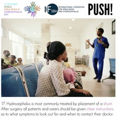 Hydrocephalus is most commonly treated by placement of a shunt. After surgery all patients and carers should be given clear instructions as to what symptoms to look out for and when to contact their doctor. Global Awareness, After Surgery, Did You Know, Knowing You, That Look