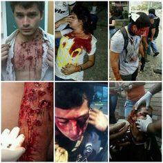 """En #Venezuela violar los DDHH es """"proteger la patria"""" y protestar pacíficamente x un mejor país es delito. #Dictadura pic.twitter.com/UVfugCBs3e"""