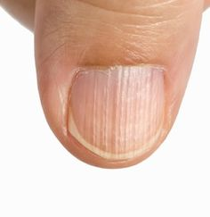Effects Of Nutrient Deficiency On The Nails: What Do They Indicate About Your Health? Effects Of Nutrient Deficiency On The Nails: What Do They Indicate About Your Health? Fingernail Ridges, Fingernail Health, Psoriasis Remedies, Skin Care Remedies, Home Remedies, Natural Remedies, Nail Conditions, Nail Problems, Health Care