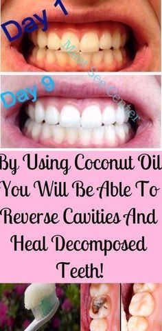You are surely familiar with the countless health benefits of coconut oil, but you might now be aware of the fact that this oil is highly beneficial for your dental health. Research has shown that it can be a perfect substitute for over-the-counter toothpaste kinds, most of which contain chemicals, and might cause irritations and …