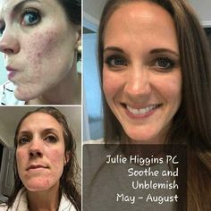 Get rid of acne and love your skin again with Rodan + Fields' Unblemish! Natural Skin Tightening, Skin Tightening Cream, Combination Skin Care, Love Your Skin, Skin Care Remedies, Rodan And Fields, Clear Skin, Skin Care Tips, Sensitive Skin