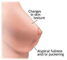 Think, that chinese drywall inflammatory breast cancer consider
