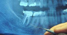 Médico alerta que tratamento do canal pode causar graves problemas! Estes novos locais pode ser qualquer órgão, glândula ou tecido.