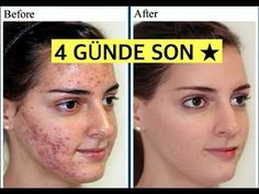 How did I get rid of acne and skin spots in 4 days? How Do I Get, How To Get Rid Of Acne, Beauty Care, Beauty Skin, Skin Spots, Natural Health Remedies, Nice Body, Body Care, Anti Aging