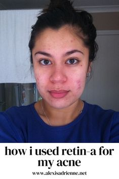 Retin-A is a powerful ingredient that helps to cure acne. Here's how I used Retin-A to get rid of my breakouts.