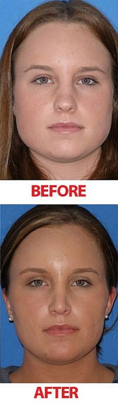 Do facial exercises really work? The answer is somewhat simple if you know that most models are using face exercises in secret, to reduce face...