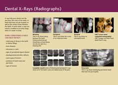The Importance of X-rays