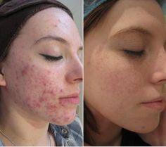 Acne scars treatment with dermaroller: www. Acne Treatment, Skin Treatments, Skin Care Clinic, Acne Scar Removal, Derma Roller, Chemical Peel, Skin Brightening, Moisturiser, Acne Scars