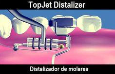 TopJet Distalizer, distalizador de molares | Odonto-TV
