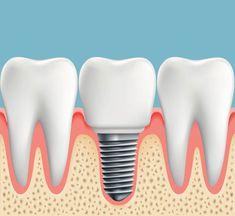 Medicover Clinique dentaire - Avantages et risques des implants dentaires Dental Implant Procedure, Dental Surgery, Implants Dentaires, Dental Implants, Implant Dentistry, Smile Dental, Dental Care, Invisalign, Tooth Replacement
