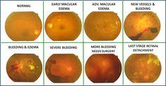 「diabetic retinopathy」的圖片搜尋結果 Baked Potato, Sweet Potato, Diabetic Retinopathy, Diabetes Management, Management Tips, Baking, Vegetables, Ethnic Recipes, Food