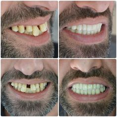 The largest provider of Dental Treatment in Turkey. We provide a range of treatments including: Dental Implants, Porcelain Crowns, Dental Veneers and Smile Makeovers. Contact us today about your dental treatment in Turkey Teeth Implants, Dental Implants, Dental Bridge Cost, Tooth Extraction Aftercare, Dental Veneers, Emergency Dentist, Smile Makeover, Smile Design, Dental Crowns