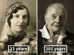 Viele Dinge ändern sich, wenn Menschen altern. Man bekommt Falten, graue Haare, Altersflecken und viele andere altersbedingte Veränderungen am Körper.Doch…