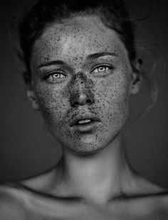 Carsten Witte The Freckles Project