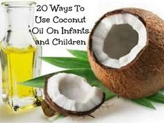 20 USES FOR COCONUT OIL IN INFANTS. CLICK THE LINK FOR DIRECTIONS/RECIPEES FOR EACH USE. Allergies/Hay Fever,Baby Acne, Bruises, Bug bites/stings, Burns, Chicken Pox, Cradle cap, Croup, Diaper rash salve, Ear infection, Hang nails, Healing, Lice, Poop repellent, Ringworm, Soft Spot strengthener, Sty Treatment, Sun burn relief, sunscreen, teething pain.