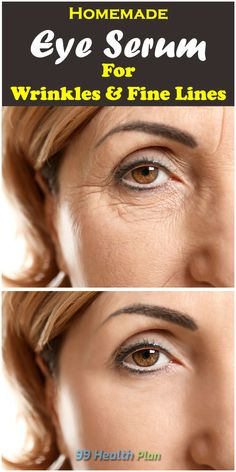 Homemade Eye Serum For WrinklesAre you the one who spend huge money on purchasing eye creams or serums, just end now! Forming your own eye serum Creme Anti Rides, Creme Anti Age, Beauty Care, Beauty Hacks, Diy Beauty, Beauty Guide, Beauty Ideas, Dry Eyes Causes, Rides Front