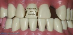 A dental crown is like a glove that covers the tooth and holds it together, protecting it from further damage.