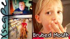 Kind hat eine Verletzung im Gesicht  Vlog | Xscape