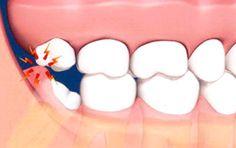 20 Lik Diş Ağrısına Ne İyi Gelir