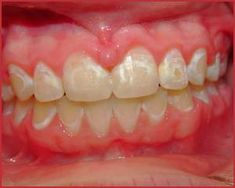 How to Clean Stains After Braces