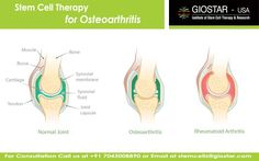 #Stem #Cell #Therapy for #Osteoarthritis  Osteoarthritis is the progressive joint degenerative disease, primarily affecting a soft connective tissue known as the cartilages. It is mostly known to be the disease of middle aged or elderly people. Although, it can damage or affect any parts of the body; joints of the hands, knees, hips and spine are commonly affected.   Know more : https://www.giostar.com/Therapy/osteoarthritis/