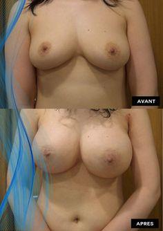 Photos avant et après suite à une augmentation mammaire avec prothèses mammaires (implants mammaires) en tunisie. Découvrez les résultats