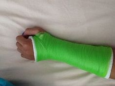 Make a Fake Arm Cast - wikiHow Because you never know...