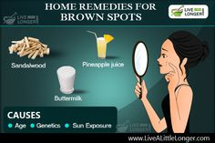 Intestine Cleansing: 7 Days DIY Home Diet Plan For Detox & Removing Parasites Brown Spots On Skin, Skin Spots, Natural Home Remedies, Herbal Remedies, Types Of Burns, Tips To Increase Height, Taller Exercises, Ulcerative Colitis, Runny Nose