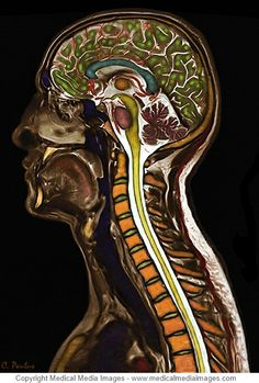 Color MRI of the Cervical Spine and Brain to show the Anatomy in Color. Ideal for Websites and Publications. http://www.medicalmediaimages.com/brain-and-cervical-spine-anatomy-image/258