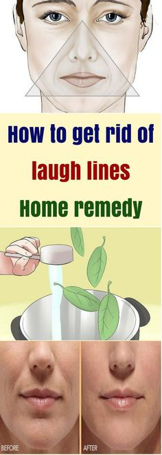 How To Get Rid Of Laugh Lines. Home Remedy!!! - All What You Need Is Here