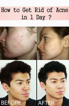 How to Get Rid of Acne in 1 Day? | Nature Is The Answer