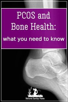 PCOS and How it Affects Bone Health - Polycystic ovaries can have long term effects on your health #naturalearthymama