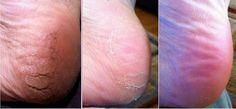 Depois destes remédios naturais, você nunca mais terá calos e rachaduras nos pés | Cura pela Natureza