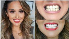 Perfect Teeth, Perfect Smile, Smile Teeth, Teeth Care, Big Teeth, Nu Skin, Zoom Teeth Whitening, Composite Veneers