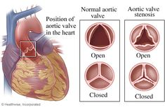 Aortic Stenosis - Aortic valve http://www.webmd.com/heart-disease/heart-failure/aortic-valve-with-stenosis