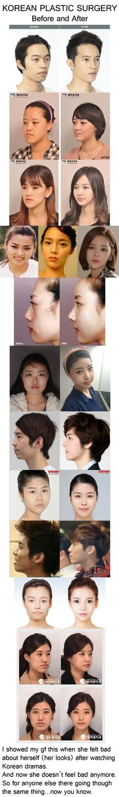 Korean plastic surgery  - funny pictures #funnypictures