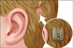 Bone Anchored Hearing Aid, a surgically implanted device is the best treatment option for patients with conductive,mixed or unilateral sensorineural hearing loss.