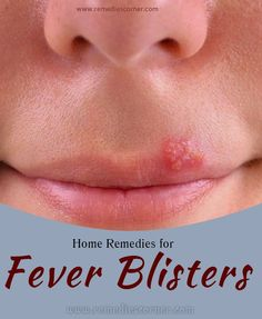Home Remedies for Fever Blisters | Remedies Corner: L-lysine is the best prevention and treatment that I have found for my husband.