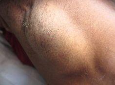 lump under one armpit