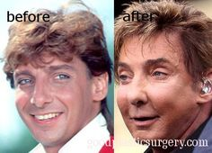 Barry Manilow - PLastic Surgery Screws People Up! Botched Plastic Surgery, Bad Plastic Surgeries, Plastic Surgery Before After, Plastic Surgery Gone Wrong, Celebrity Plastic Surgery, Celebrities Before And After, Celebrities Then And Now, Barry Manilow, Eyes Wide Shut