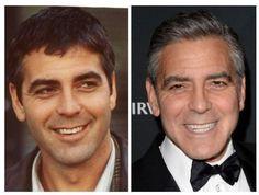 Os sorrisos dos celebridades antes e depois de uma visita ao dentista: George Clooney.