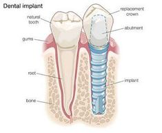 If you lose a tooth replace it with a dental implant. It will never get a cavity and can last forever.  We are here to help you go on our site for more info - Dental Care 4 Kids | #Flower Mound | #TX | www.dentalcare4kidstexas.com