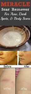 This DIY scar remover is seriously the best thing to happen since sliced bread – and we take sliced bread very seriously! Anytime we stumble upon a homemade skin cure, we jump at the chance to try it out, and this one was NO exception! After using this homemade scar remover for just one week, …