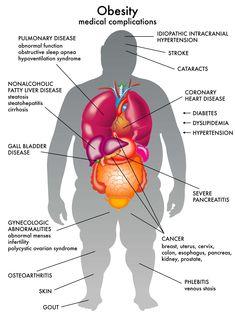 Gluteus medius fat loss photo 1