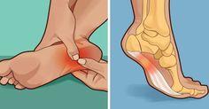 Đau chân không đi được? 3 tuyệt chiêu giúp bạn khỏi đau